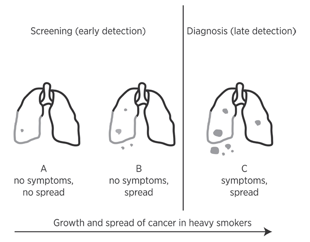 lung cancer screening: early but not early enough? - testing, Powerpoint templates